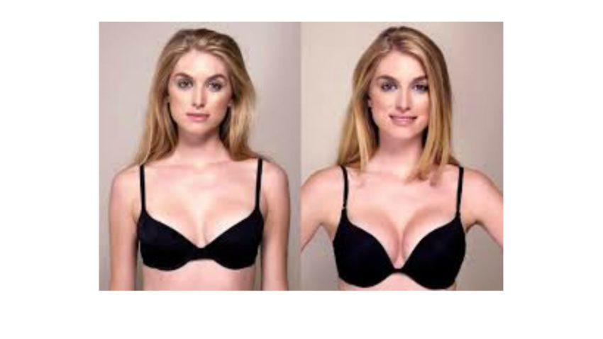 breast actives before and after results